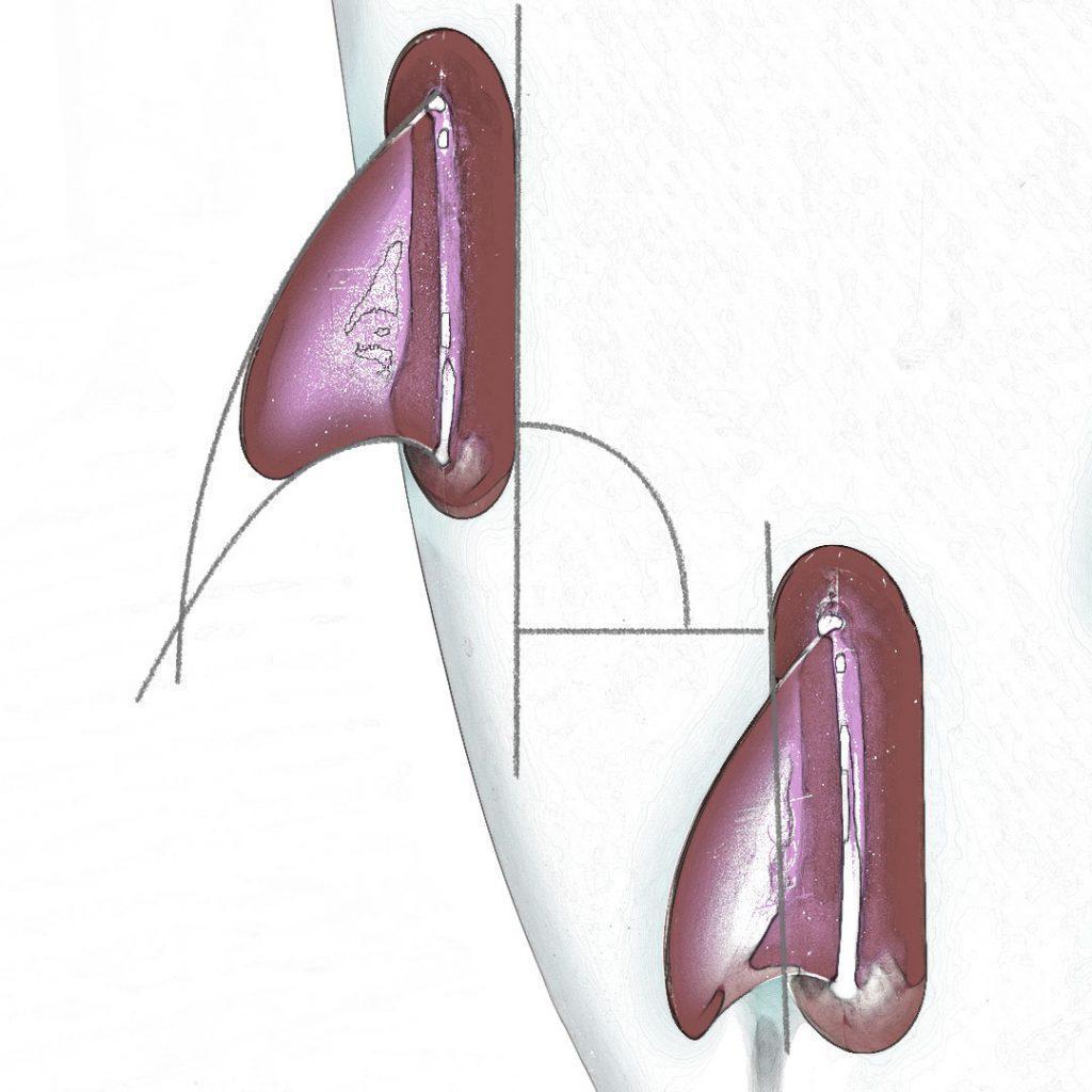 fin-diagram